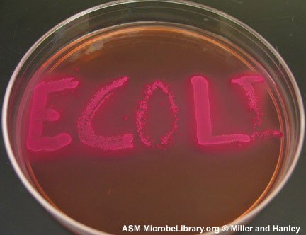 escherichia-coli-fig5
