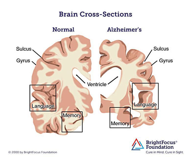 Brain_Cross-Sections