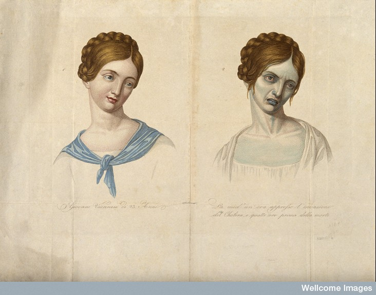 V0010485 A young Venetian woman, aged 23, depicted before and after